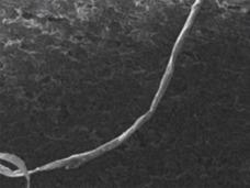 人体から無線盗聴器が発見される!? 地球上のものではない可能性