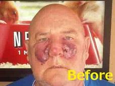 顔が半分になった男 奇病・血管肉腫の恐怖とは?=イギリス