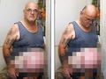 腹が風船のように膨らみ続ける男 4回手術するも、原因不明=オーストラリア