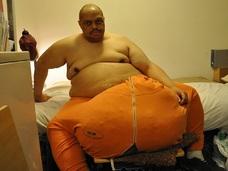 悲哀! 世界一巨大な玉袋を持つ男、手術したら今度はアソコが●センチに!!