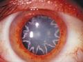 瞳にキラキラの星型模様が出た男!! 原因は恋ではなく……驚愕の症例報告!