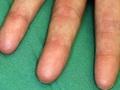 生まれつき指紋がない人間!? 世界でたった4家系のサンプルからわかった、人体の謎とは?