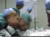 現実に生きるエレファントマン  顔に17.5キロの腫瘍を持つ男、記録的に深刻なケース