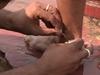 """カミソリで人体を切って、悪い血を流し出す!! インドの路上で現在も行われる""""瀉血治療""""とは?"""