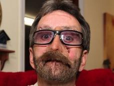 命か、顔か? 顔面が空洞化した男 「悪性エナメル上皮腫」の恐怖とは?