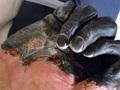 「黒死病」に感染するとどうなるの!? 生死の境をさまよった末に生還した、元感染者が語る!