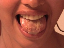 ミスコンで勝つために舌を縫った18歳の女! 〜命がけの美容整形〜