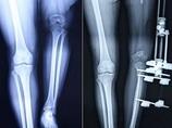 中国人女性、1年で脚を23cm伸ばすことに成功! 1日1mmまで!? 仰天治療!!