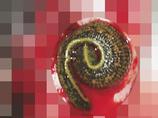 【閲覧注意】食いちぎられた耳がキレイに元通り!! 1匹の吸血ヒルが少女を救う!