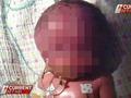 150年間で16件の顔面重複奇形、2つの顔が繋がった奇跡の赤ちゃん誕生