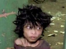 育児放棄で監禁された15歳の少年!! 痛まし過ぎる姿が児童虐待の実態を訴える