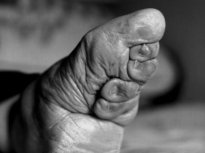 変形したつま先、折り畳まれた指…中国最後の纏足女性が写真集に