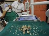 """海外の超悲惨なアンビリーバボー歯科治療!!  インドでは""""232本の歯""""を摘出、アメリカでは…痛恨の驚愕医療ミス!"""