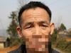 【閲覧注意】54年間、口が消えた男!?  狼に噛みちぎられた傷を再建へ =中国