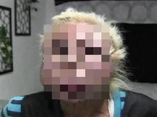 デコボコの肌、腫れ上がった瞼… 美容整形に取りつかれた世界の女たちの「成れの果て」