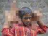 「育ちすぎる巨大な手」を持つ8歳の少年 ― 膨張が止まらぬ謎の症状に医師も困惑=インド