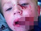 """""""暑さでイラついた""""ピットブル犬、4歳男児の頬を切り裂く!"""