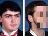 自分で撃って顔を失った男 ― 驚異の顔面移植手術と「顔の有効期限」