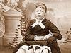 腰から妹が生えた女 ― マートルの奇跡の人体構造と数奇な人生とは?