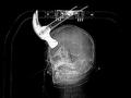反同性愛者がルームメイト18歳の頭をハンマーで殴った結果…!