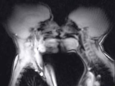 """医学研究目的の""""見え過ぎる""""アダルト動画! セックス中のMRI映像が魅せる「人体の神秘」"""