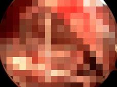【閲覧注意】鼻に棲みつく大量のウジ!! 「鼻ハエウジ病」のグロすぎる手術映像!