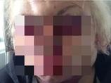 1秒ごとに顔が風船のように膨らみ続けて、頭部が2倍に! 性転換整形手術=イギリス