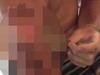 【閲覧注意】巨大かさぶた男の「剥きたい欲望」!! ペリ…ペリリリ…!!