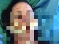 【警告】他人事ではない? 薬の副作用で美少女の姿が変わり果てる悲劇!!