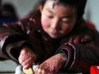 全身の皮膚が剥がれ落ちる「蝶の子ども」 ― 8歳優等生の過酷すぎる暮らしとは!?