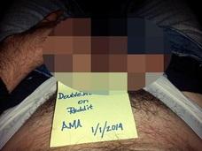 【閲覧注意】生まれつき2本のペニスを持つモテ男!! 「陰茎重複症」患者の奇妙なペニス活用法