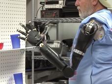 """両腕を失った男性、40年振りに""""脳""""で両腕を動かすことに成功! 「筋電義手」を動かした感動の瞬間映像!"""