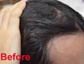 【画像】4日で薄毛が改善した衝撃ビフォーアフター! スカルプシャンプーの効力が尋常ではなかった!!