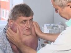 顎が胸まで伸びた男! 重さ6kg、完全切除へ=スロバキア