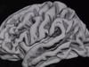 まるでニュータイプ? 元気いっぱい「スーパー老人」の脳に隠された謎