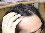 「顔半分がおでこ」の男が試した! 育毛剤の驚くべき効力!