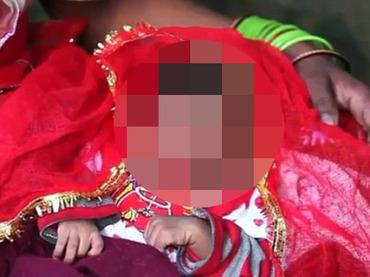 """【閲覧注意】""""ゾウの鼻""""を持つ赤ん坊、崇拝の対象に!! 地元住民「ガネーシャの生まれ変わりだ」=インド"""