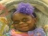 難病の少女の顔を笑う人々 ― 母「彼女はモンスターではない」=米