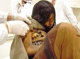 500年間凍っていた少女! まるで生きているよう!? ~ミイラでわかった、インカ帝国の生贄の実態~