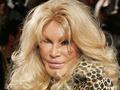 整形で「ジャングルに住むネコ」の顔になった女? 整形で無残な顔になった人々