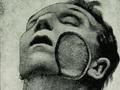 【超・閲覧注意】顔面を食い尽くされた人々!! 人喰いバクテリアの恐怖