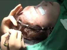 【閲覧注意】「ヤバすぎて泣いた」高須クリニックが投稿している衝撃・整形手術動画!