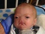 """可愛い顔なのに""""鼻がない""""…!! 1億9,700万人に1人、「無鼻症」の赤ん坊が誕生!"""