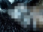 【閲覧注意】すべての恐怖は、毛穴にある ー 見たら必ず鳥肌が立つ「ボットフライ」映像
