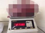 【閲覧注意】摘出された世界最大の腎臓がグロすぎる!! 放置すると恐ろしい「ADPKD」の末路=インド
