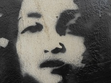 【閲覧注意】トリーチャー・コリンズ症候群 ― 顔面が不調和な少女
