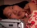 中国の巨人症の女 ― 貧困と悲運が引き起こした悲しい死