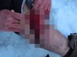 【閲覧注意】リアル・ブラックジャック! ロシアには自分で自分を手術する人間がいる!!