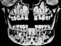 【頭蓋骨は語る】乳歯が抜ける前の子どもの口の中が衝撃的にヤバすぎる!
