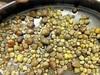 腎臓を埋め尽くす「420個の結石」を摘出!! 日本人も大好きなアノ食品が原因か!?=中国